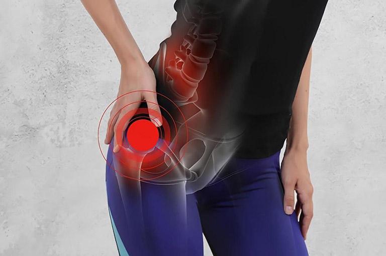 Nguyên nhân gây viêm bao hoạt dịch khớp háng