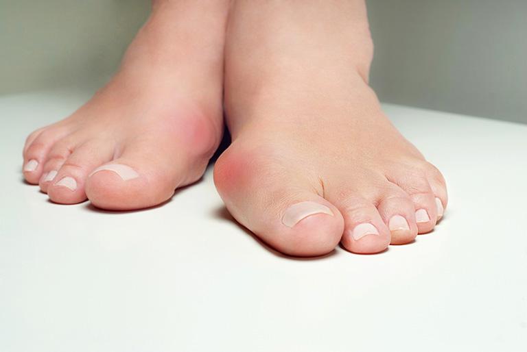Sưng kèm theo bầm tím hoặc đỏ ửng ở ngón chân cái