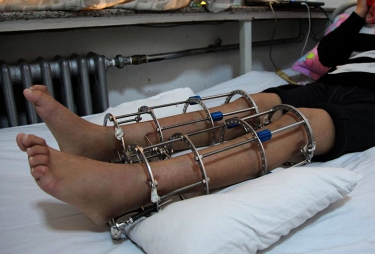 phẫu thuật tăng chiều cao bao nhiêu tiền