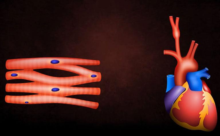 canxi và bệnh tim mạch