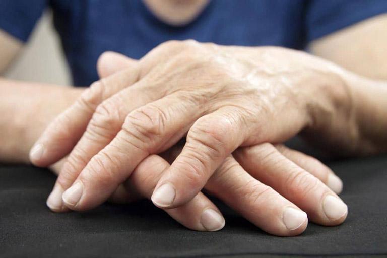 lưu ý khi bị đau khớp ngón tay