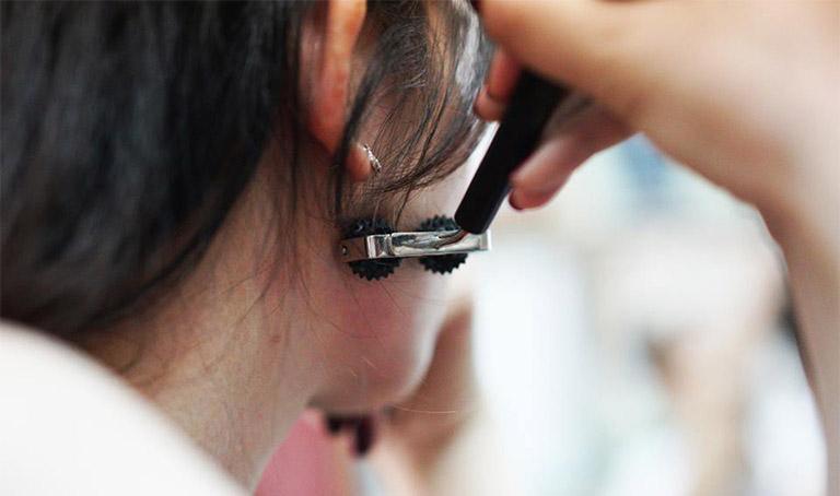 Các bước cơ bản trong điều trị đau thần kinh tọa bằng diện chẩn