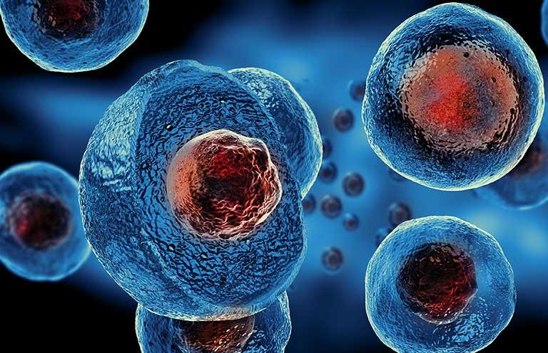điều trị thoát vị đĩa đệm bằng tế bào gốc