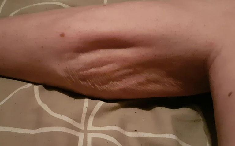 dấu hiệu chuột rút bắp chân