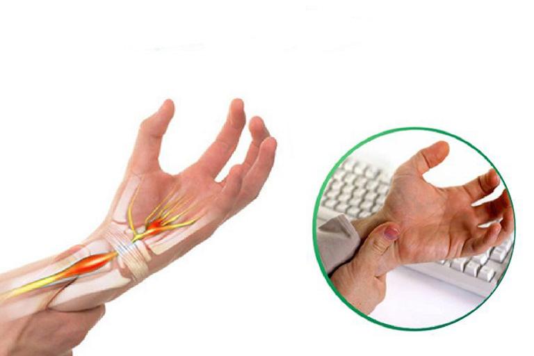 đau khớp ngón tay là bệnh gì