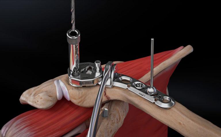 rủi ro nẹp gãy xương đòn di lệch