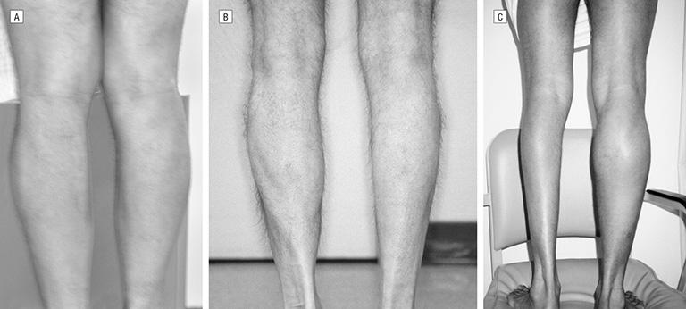 Triệu chứng teo cơ chân