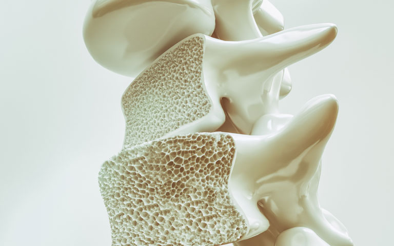 thiếu canxi gây loãng xương