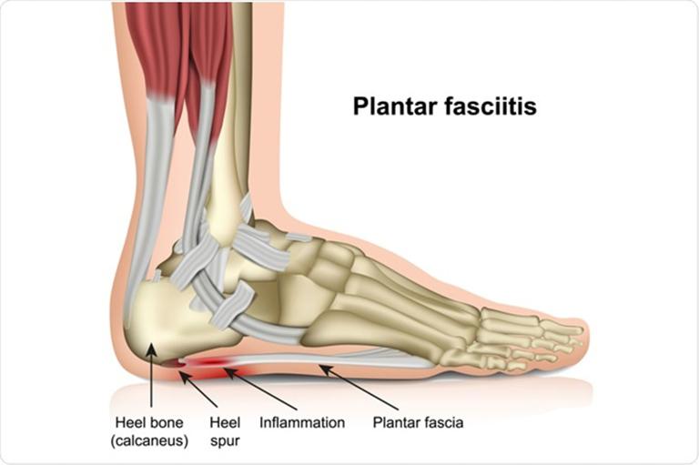 Viêm cân gan chân (Plantar Fasciitis)