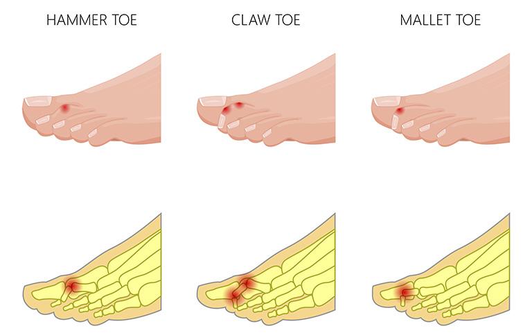 Ngón chân đầu búa