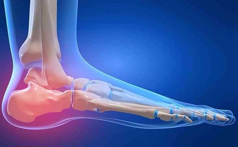 Đau gót chân khám ở bệnh viện nào?