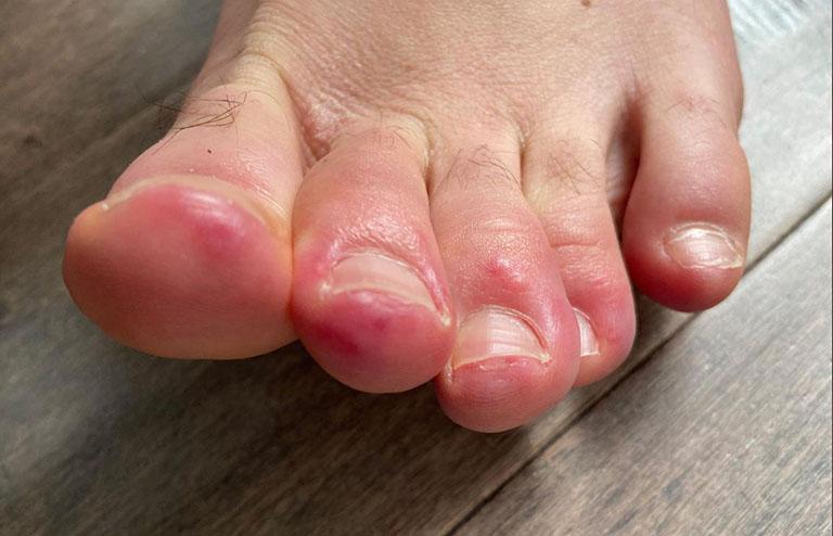 Chấn thương, va đập mạnh ở các ngón chân