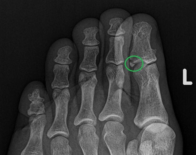 Gãy xương ngón chân