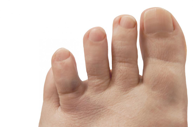 Đầu ngón chân bị đau như kim châm không được điều trị gây biến dạng khớp vĩnh viễn