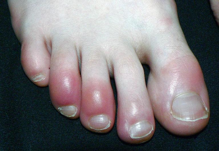Đầu ngón chân bị đau như kim châm