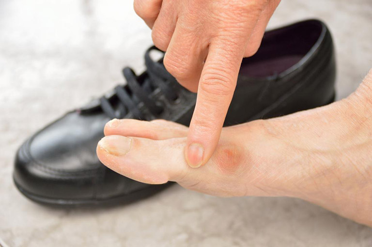 Triệu chứng đau ngón chân khi đi giàu