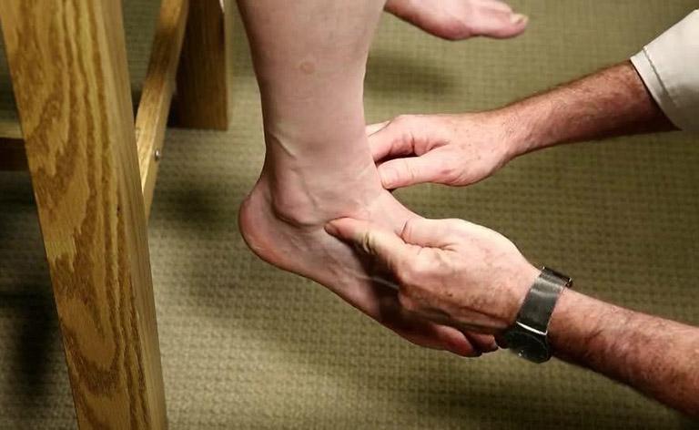 Chẩn đoán giãn, đứt dây chằng cổ chân