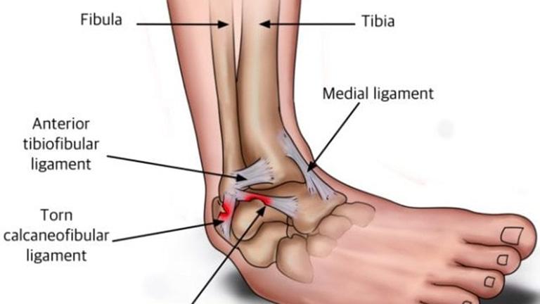 Giãn, đứt dây chằng cổ chân xảy ra khi cổ chân lệch sang một bên
