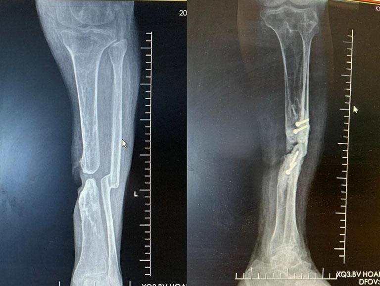 Phục hồi chức năng để hạn chế biến dạng xương sau chấn thương