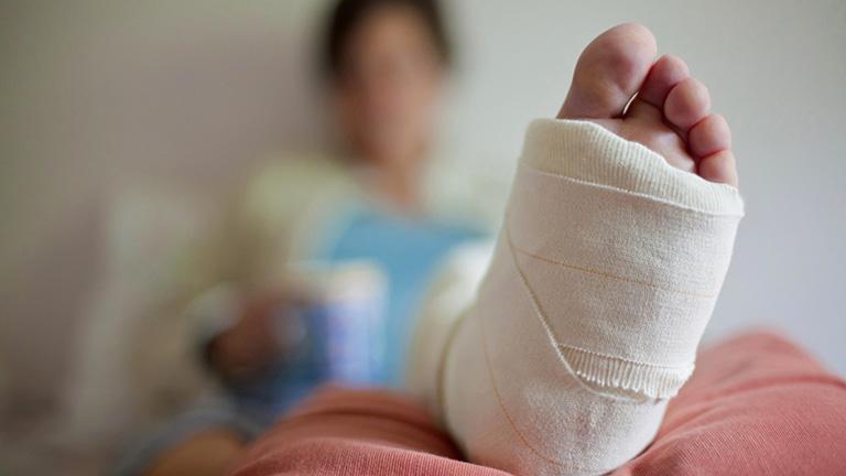 Cần phục hồi chức năng sau gãy xương cẳng chân càng sớm càng tốt