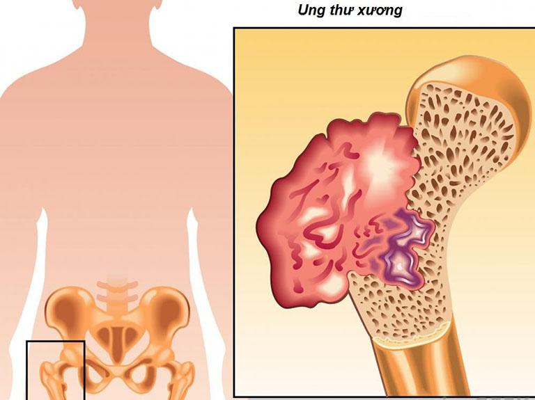 Ung thư xương giai đoạn cuốilà giai đoạn tiến triển nhất của bệnh