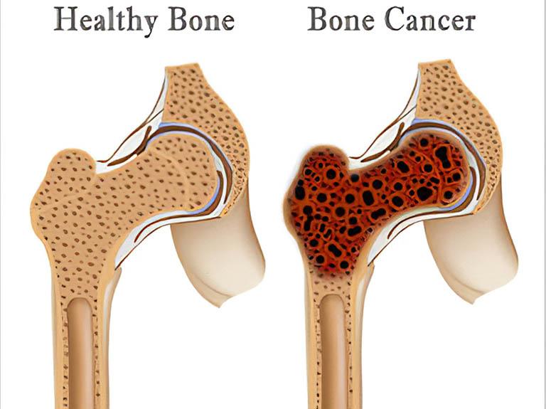 Ung thư xương giai đoạn cuối