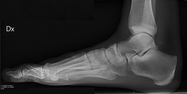 Chẩn đoán viêm khớp bàn chân