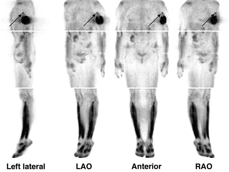 Chụp cắt lớp phát xạ Positron - PET hoặc chụp PET-CT