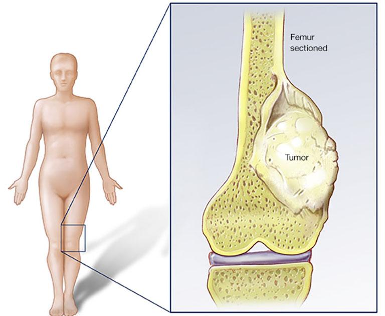 Các phương pháp xét nghiệm - chẩn đoán ung thư xương