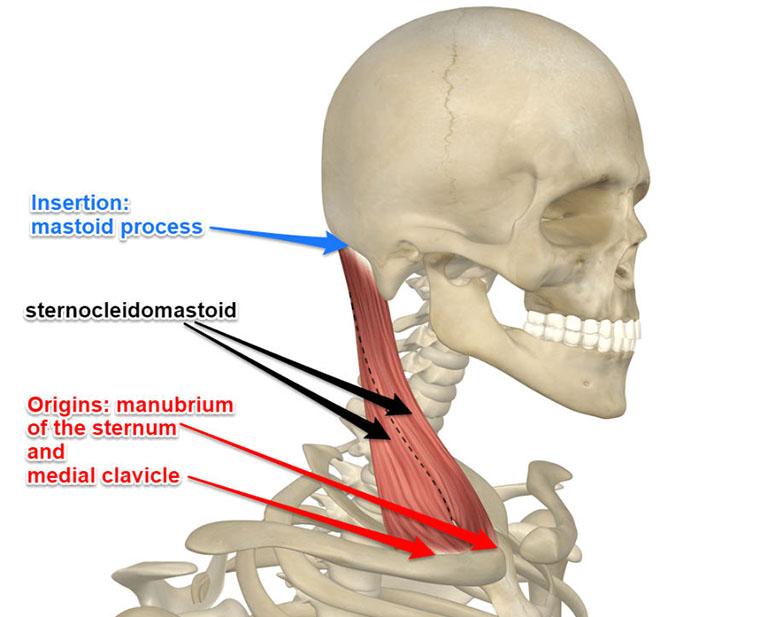 Cơ sternocleidomastoid ngắn