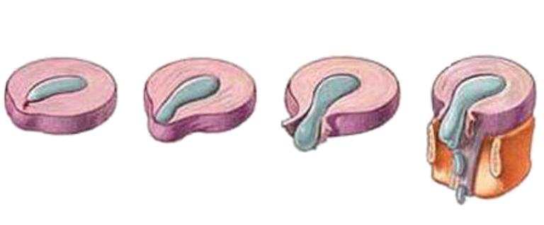 Rách vòng xơ đĩa đệm có 4 giai đoạn
