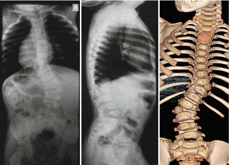 Các xương cột sống bất thường sẽ được thể hiện rõ nét trên hình ảnh X-quang