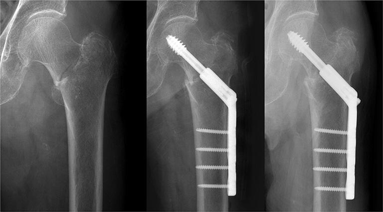 Phẫu thuật kết hợp xương gãy