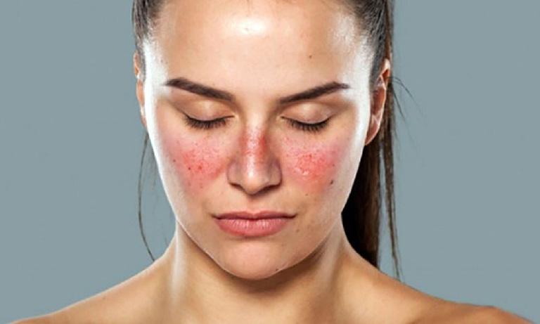 Corticoid được dùng để điều trị lupus ban đỏ hệ thống