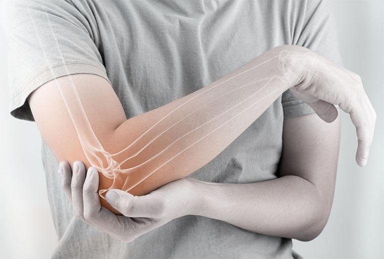 Thuốc Diclofenac có tác dụng điều trị viêm, giảm đau cho người có cơn đau từ trung bình đến nặng