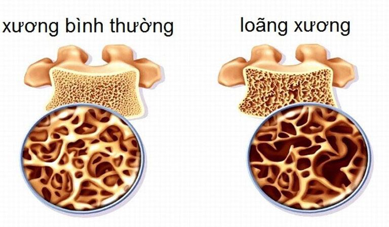 Bệnh loãng xương thuộc chứng cốt nuy
