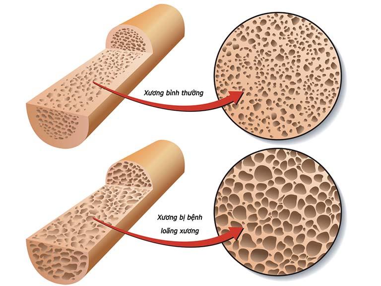 Bệnh loãng xương làm tăng nguy cơ gãy tay