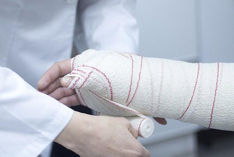 Trường hợp nặng có thể mất khoảng 3 - 6 tháng để phục hồi hoàn toàn