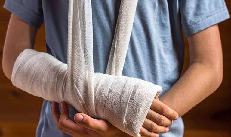 Lợi ích khi bó bột điều trị gãy tay