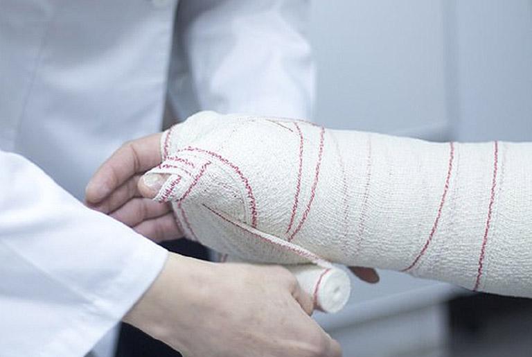 Quy trình bó bột trị gãy tay