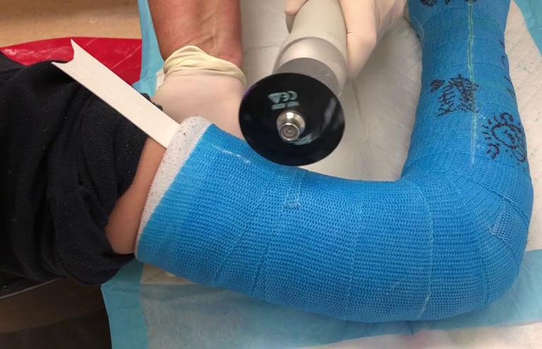 Có thể cắt bột sau 4 - 8 tuần đối với trường hợp nhẹ và 8 - 12 tuần đối với gãy xương cẳng tay
