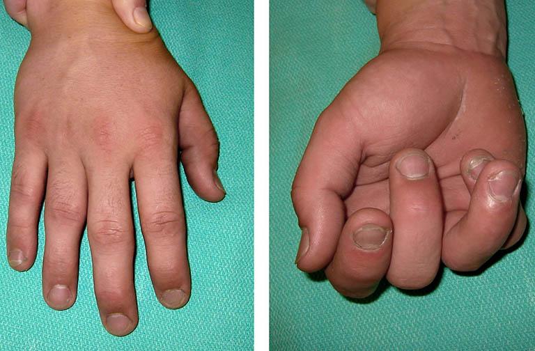 Dị tật ngón tay