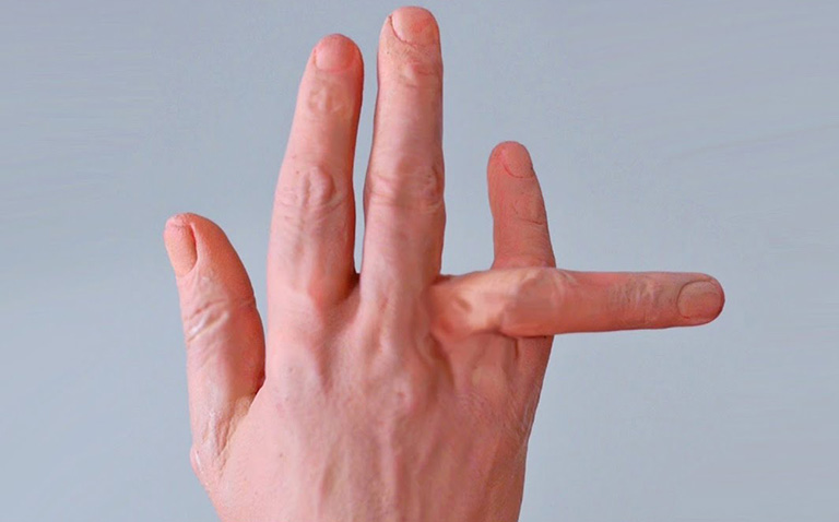 Biến dạng ngón tay