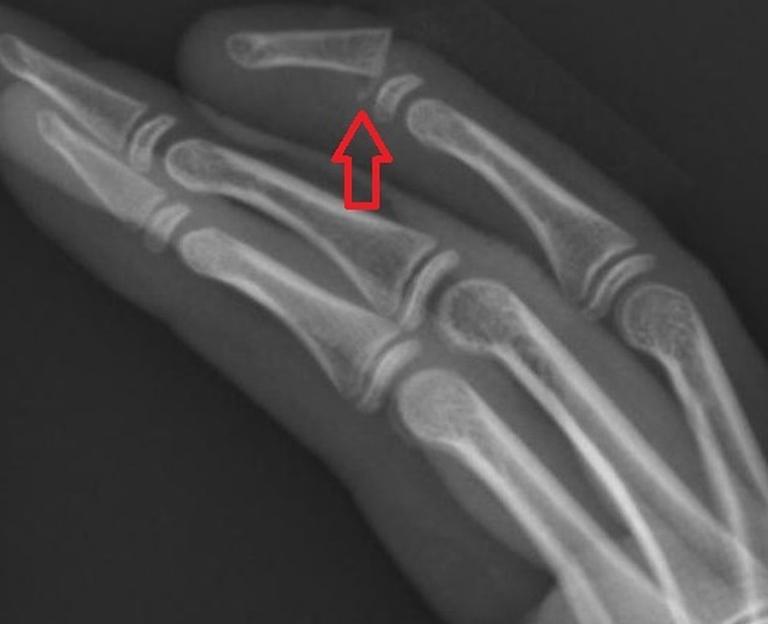 Chẩn đoán gãy xương ngón tay