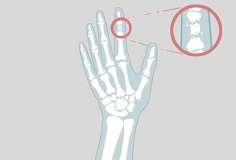 Gãy xương ngón tay