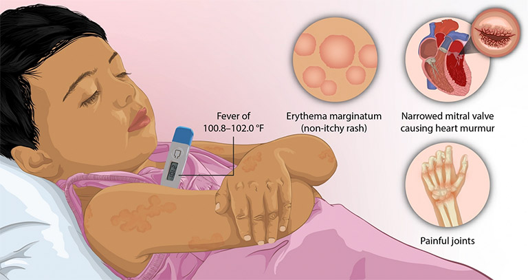 Các triệu chứng của thấp khớp cấp