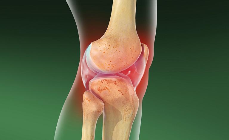Tiêm Corticoid vào khớp giúp giảm các triệu chứng viêm và đau ở khớp