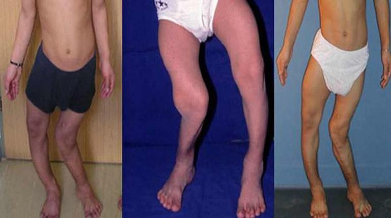 Triệu chứng của bệnh còi xương kháng vitamin D