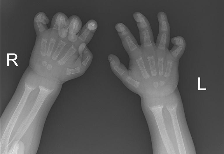 Hình ảnh X-quang có thể giúp xác định các dị tật của xương