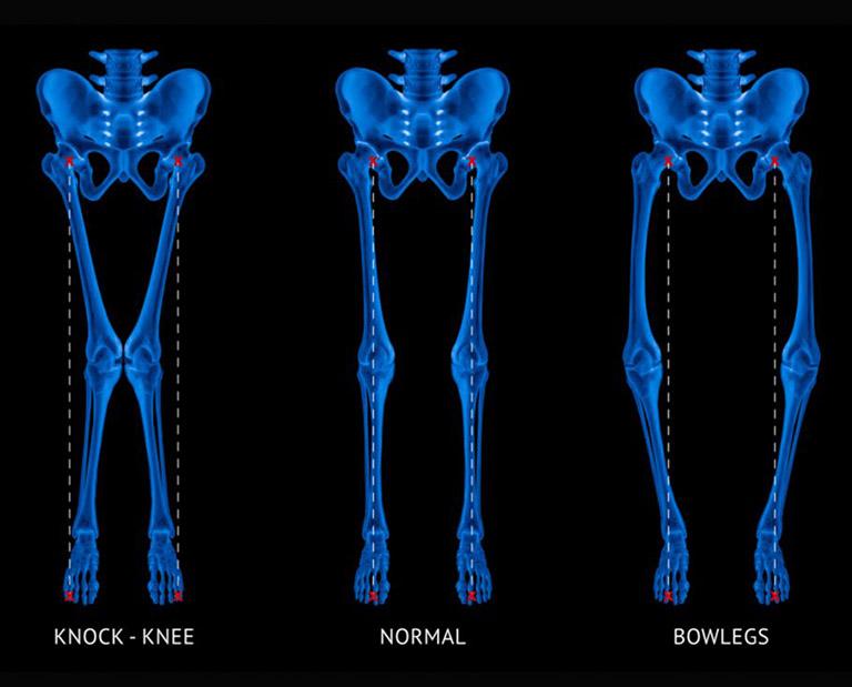 Dấu hiệu nhận biết bệnh còi xương do thiếu vitamin D